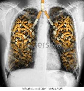 lungs full of cigarette-smoking - x ray of Human